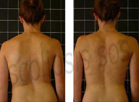 Illustration of Swimming For Scoliosis Therapy?