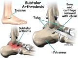 Should The Knee And Ankle Joints Be Removed?