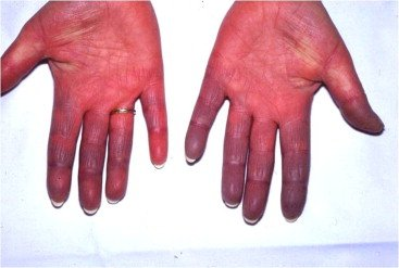 Illustration of Overcoming Prolonged Itching And Widen In The Hands?