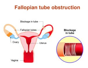 Illustration of What Is Tubal Blockage Other Than The Womb?