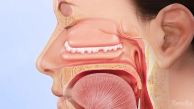 Illustration of Can Nasal Polyps Cause Dizziness?