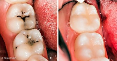 Illustration of Patching Cavities Even Though It Never Hurts?