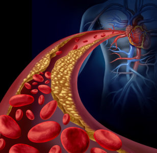 Illustration of Is It True That I Have Heart Disease, And Is It Dangerous?