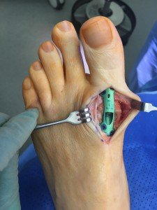 Illustration of The Stitches On The Big Toe Are Painful And Numb?