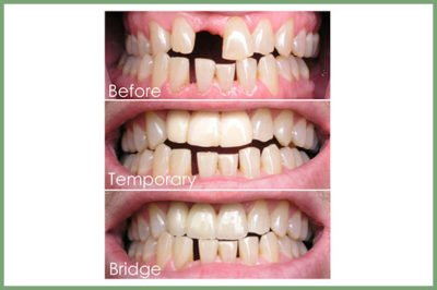 Illustration of Can Temporary Dental Fillings Last For 2 Weeks?
