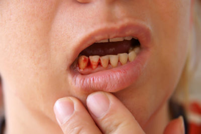 Illustration of Management Of Fever Accompanied By Broken Teeth In Children 2 Years?