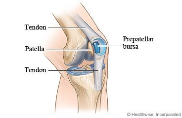 Illustration of There Is A Small Bump On The Left Knee, Do You Have To Operate?