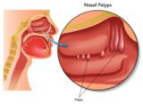 Do Polyps Affect Odor In The Throat?
