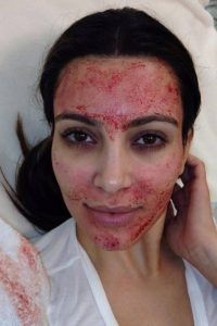 Illustration of Can Facial Treatment While Menstruating?