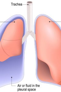Illustration of Pulmonary Pain Three Years Ago And Now Relapses To Cough Up Bloody And Left Chest Pain?
