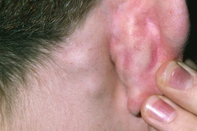Illustration of Swollen Ears And Rashes On The Neck And Cheeks Of Children Aged 2 Years?