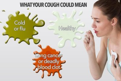 Illustration of Dry Cough Sometimes Spits Clear Phlegm