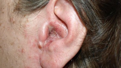 Illustration of There Are Lumps In The Ears