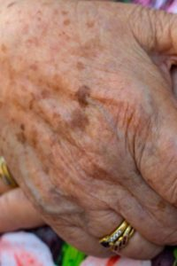 Illustration of Spots On The Skin Of The Hands?