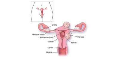 Illustration of Bleeding Out Within 2 Menstrual Periods?