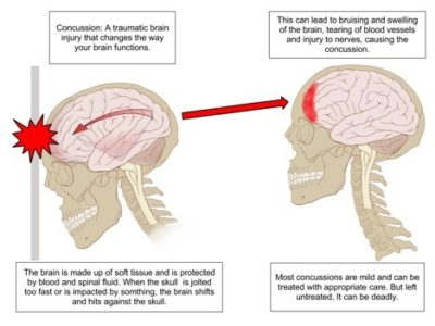 Illustration of Can Head Injury Cause Prolonged Headaches?