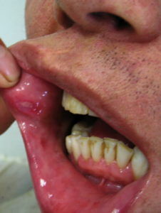 Illustration of Anaka Convulsions Until Bleeding From The Mouth?