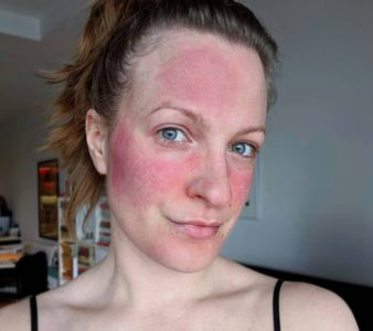 Illustration of Thickening And Redness Of The Skin After Using Beauty Products?