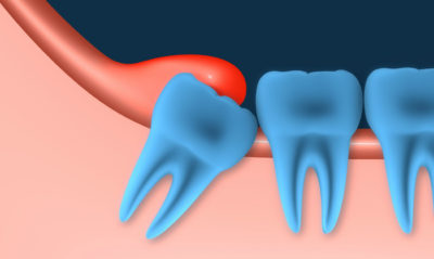 Illustration of Toothache Right Molars To The Head That Never Healed?