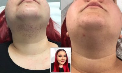 Illustration of Appears Hair On The Chin In Women?