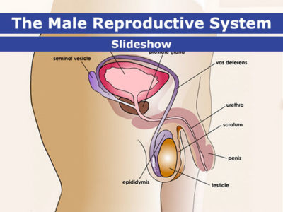 Illustration of Problems Around Male Reproductive Organs