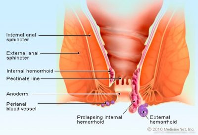 Illustration of Hemorrhoids
