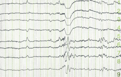 Illustration of EEG Results