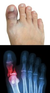 Illustration of Sprained Toes