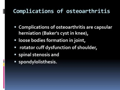 Illustration of Complications Of Osteoarthritis