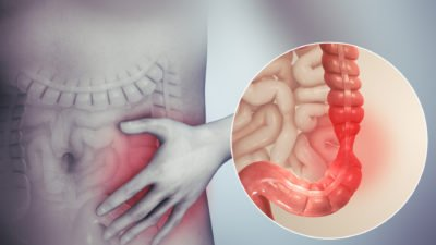 Illustration of Difficult Bowel Movements After Intestinal Infections.