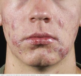 Illustration of Do The Symptoms Of Acne On The Face Result In Fever, And Pain In The Joints?