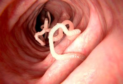 Illustration of Worm Infection