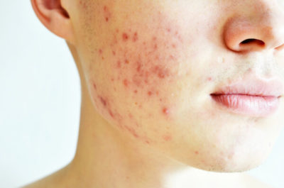 Illustration of Acne Skin