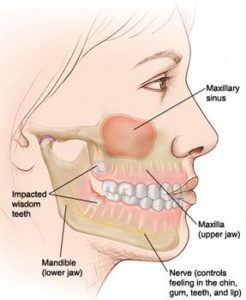 Illustration of Toothache During A Cold
