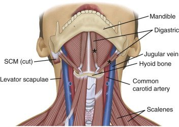 Illustration of Muscle Under The Chin Hurts