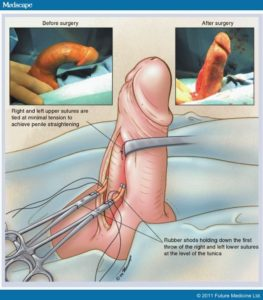 Illustration of Complaints On Penile Sutures