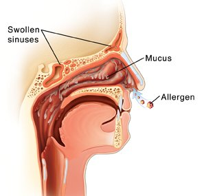 Illustration of Nasal Congestion Due To Allergies