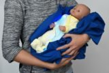 Overcoming The Baby's Brown Skin Due To Phototherapy