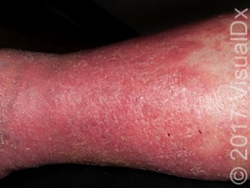 Illustration of The Cause Of Red Rashes On The Legs Are Widening