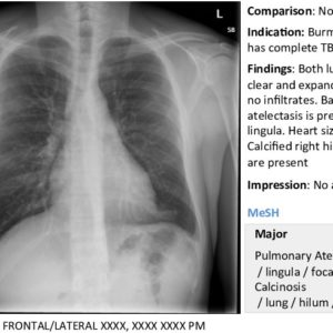 Illustration of Chest X-ray Examination Results