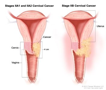 Illustration of Treatment For Stage 4 Cervical Cancer