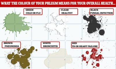 Illustration of The Cause Of Phlegm Appear Without Coughing On Smokers