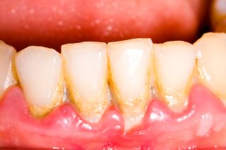 Illustration of Causes Gum And Tooth Down