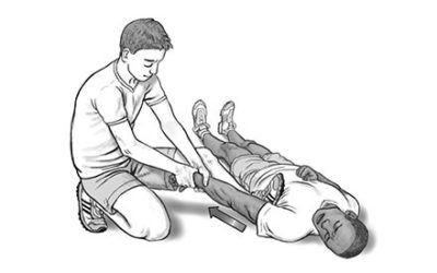 Illustration of First Aid For Elderly People Who Slip And Experience Shoulder Dislocation