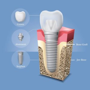 Illustration of A Dental Implant Was Detected By A Body Scanner At The Airport