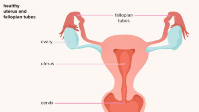 Illustration of Signs And Symptoms Of Pelvic Inflammation