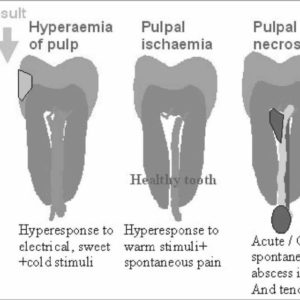 Illustration of Blackened Teeth And Pain When Experiencing Pulpitis