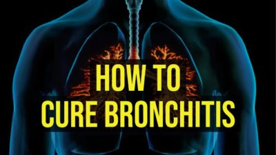 Illustration of Can Bronchitis Be Cured?