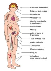 Illustration of Limp Body, Itchy Throat, Chest Pain, Irregular Breathing, Cramps And Throbbing In The Stomach