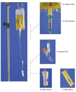 Illustration of Can Intravenous Fluids Be Used On The Inside Wall Of The Doctor's Vagina?
